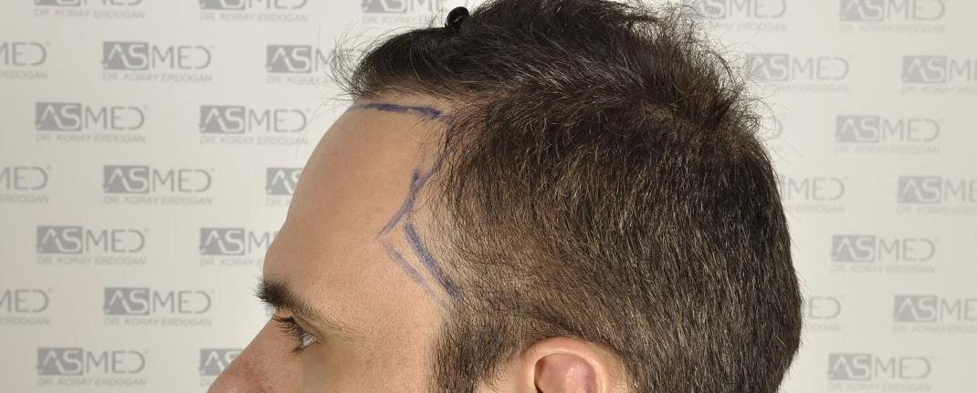 αριστερη οψη - σχεδιασμος hairline.JPG
