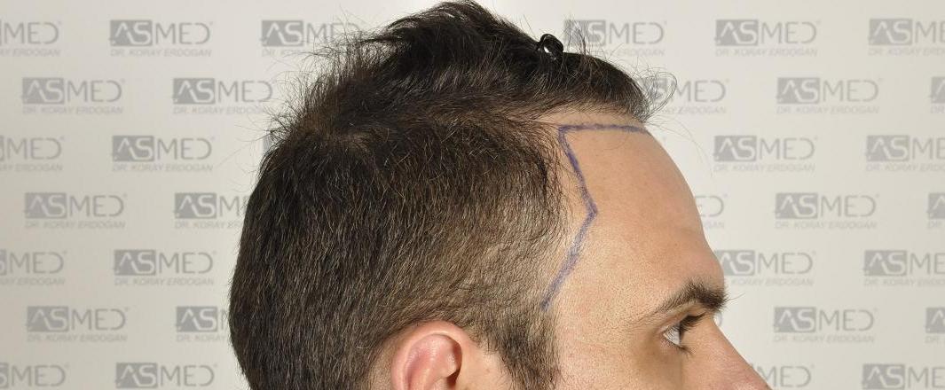 δεξια οψη - σχεδιασμος hairline.JPG