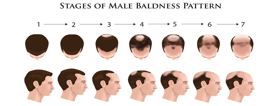 hair-loss-progress-men.jpg